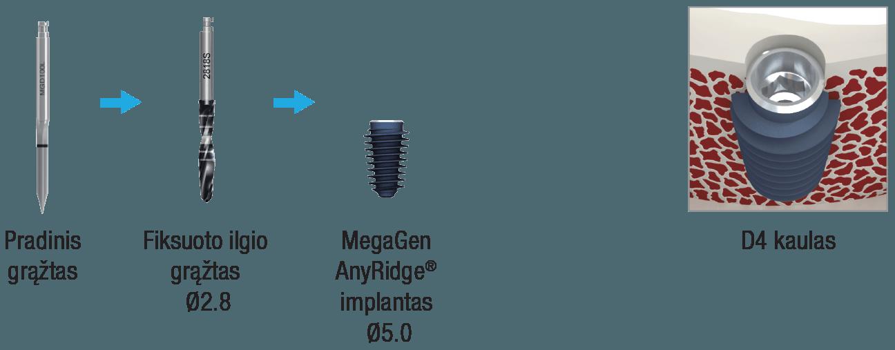 anyridge-d4