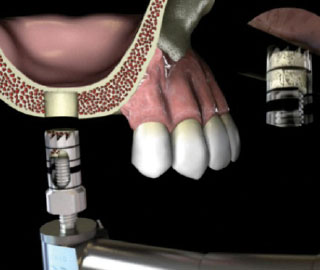 Sukdami mini varžtelį iš grąžto išimkite surinktą kaulą.