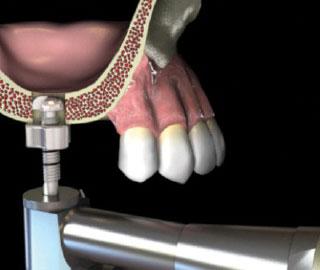 Naudodami Express grąžto stoperį, grąžto ilgį nustatykite 1 mm ilgesnį, negu likęs kaulas iki sinuso dugno membranos. Express grąžto diametrą pasirinkite 0.7 - 1 mm siauresnį nei planuojamo įsriegti implanto diametras.