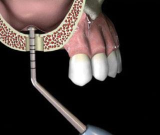 Per padarytą osteotomiją, naudodami grybo formos instrumentus, atkelkite sinuso dugno membraną.