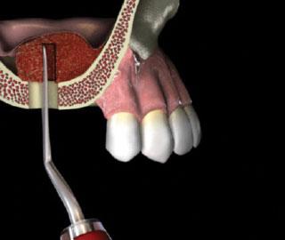 Naudodami kaulo pernešimo ir paskirstymo instrumentą, sudėkite kaulo pakaitalą.