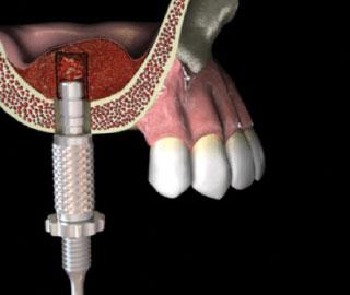 Sinuso pakėlimo aukštį galite nustatyti naudodami kondencatorių su stoperiu.