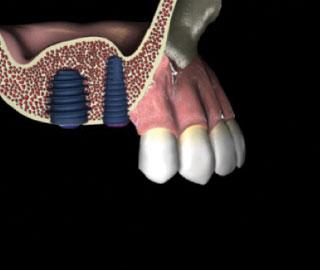 Įsriekite dantų implantus.